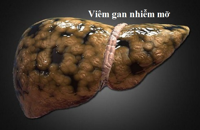 gan-nhiem-mo-02